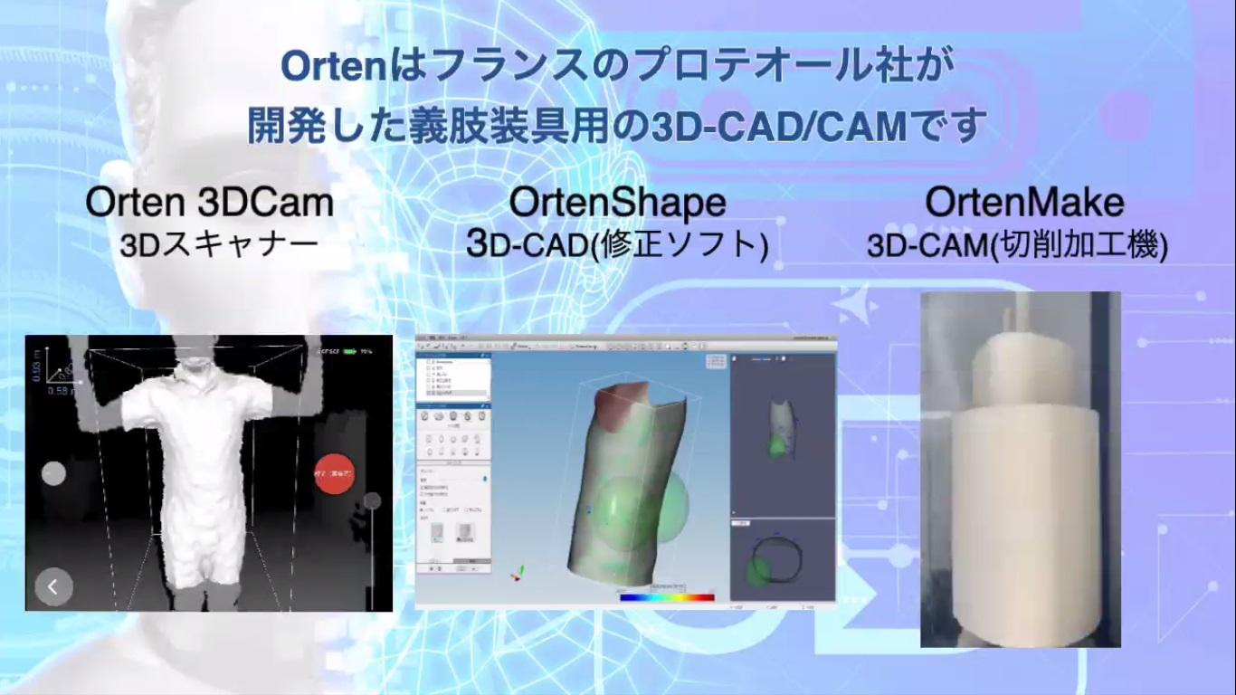 Orten 3D-CAD/CAMシステムを用いたスキャン~製作までの流れを動画でご紹介します。